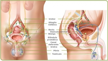 Biópsia Transretal Prostática
