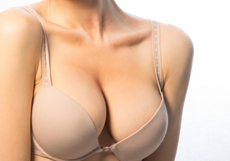 Resultado de imagem para mamoplastia